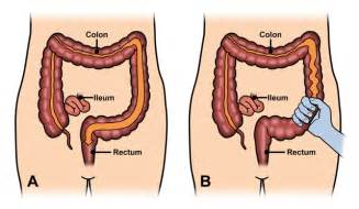 irritate bowels causing bowel changes duration picture 3