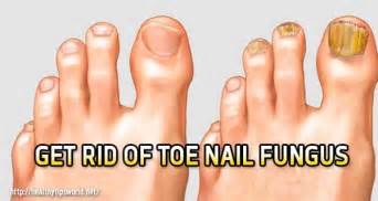 how to naturally get rid of toe nail picture 2