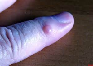 red wart or red bump on finger picture 18