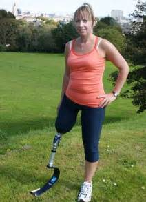 female leg amputee playlist picture 10