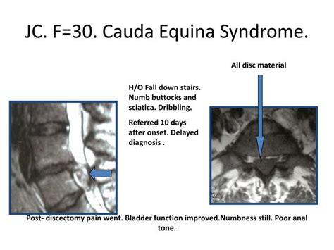 cauda equina bladder picture 6