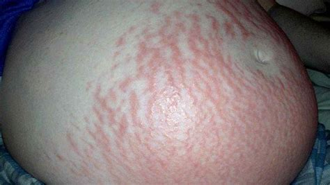 stretch marks from pregnancy picture 5