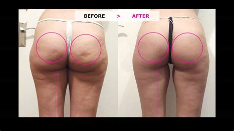 cellulite and new advances in the medical world to eliminate it picture 8
