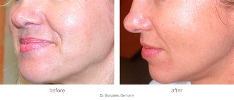 anti aging derma roller picture 6