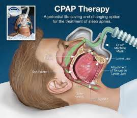 dangers of sleep apnea machine picture 17