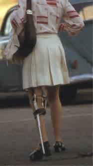 women crutches pain leg picture 5