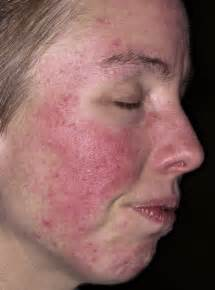 Acne rosecea picture 7