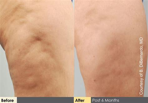 cellulite and laser insute picture 14