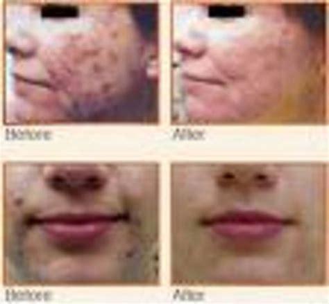 acne laser florida picture 11