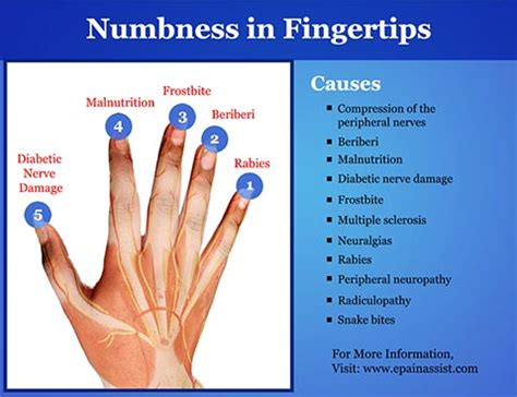 health numbness in hands picture 6
