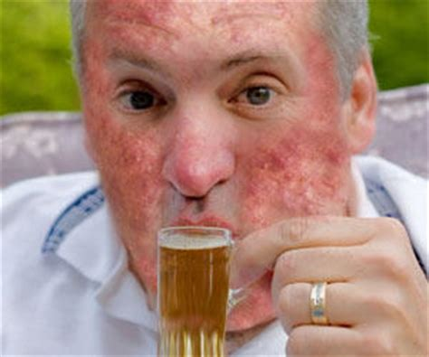acne and alcohol picture 1
