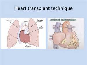 heart and liver transplant picture 2