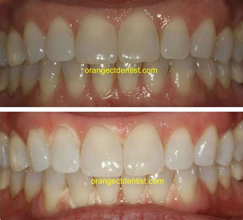 connecticut teeth whitening picture 17