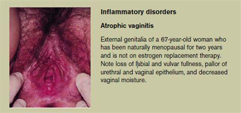 vaginal skin cancer picture 6