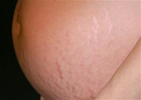 can stretch marks show on mammograms picture 11