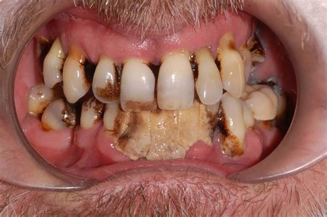 bad teeth picture 5