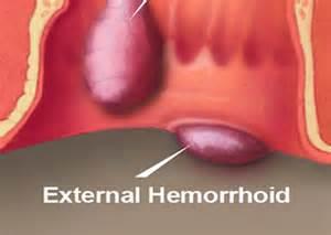 external hemorrhoids picture 3