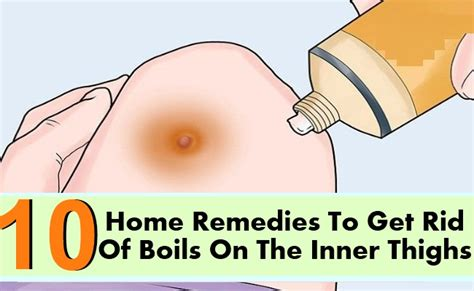 home remedy boils picture 2