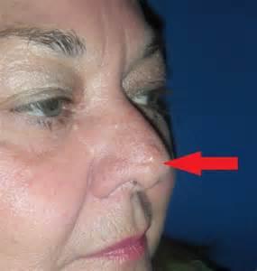 tumer removal skin stretch picture 2
