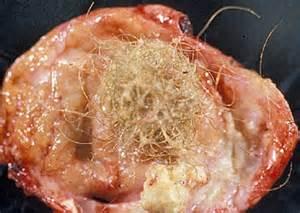 dissolving acne nodule picture 6