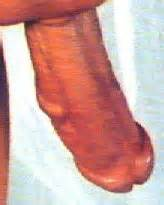 swollen vein penis picture 10