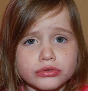 chapped lips infant picture 7