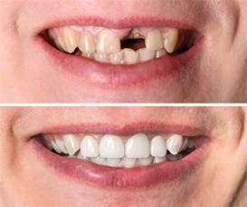 los angeles tooth crown picture 7