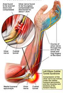 can tarcel tunnel syndrome give u pain in picture 15