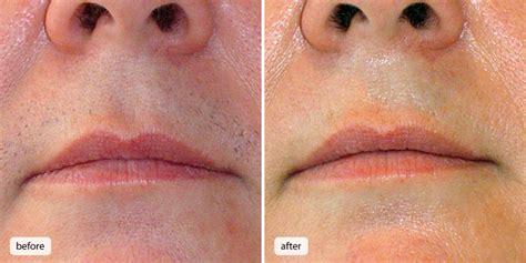 acne free info picture 9