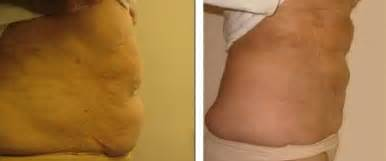 slender ray lipo,side effects picture 7