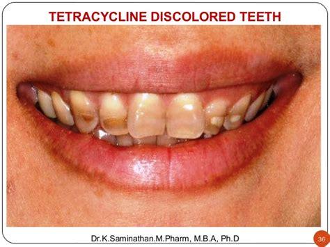 antibiotic discoloring teeth picture 10