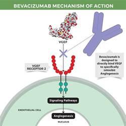 Colon beneign tumor picture 7