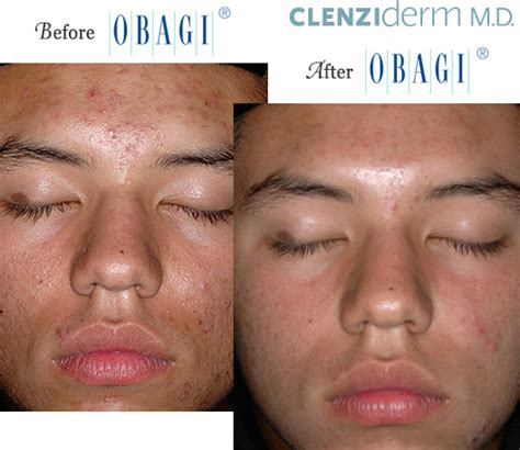 coast of acnezine supplement of acne in india picture 11