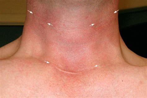 parathyroid removal procedures picture 10