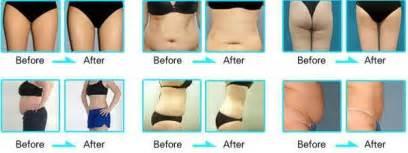 lipo machine for cellulite picture 11