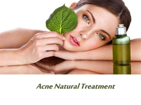 acne herbal treatment picture 7