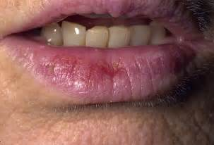lips diseases picture 2