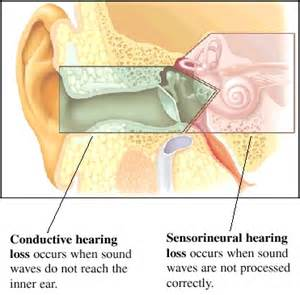 hearing loss and lots of pus in ear picture 2