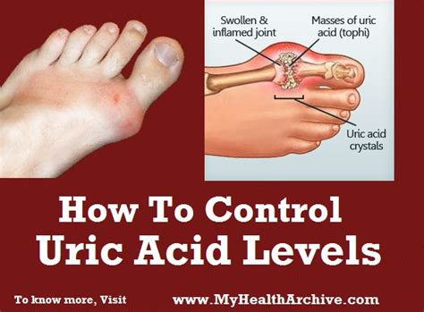 what causes uric acid picture 1