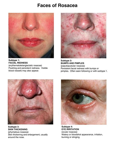 Homemade herbal for rosacea picture 5