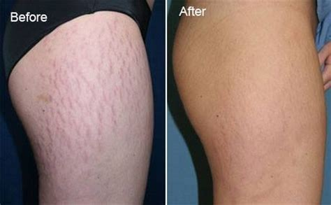 do stretch mark creams cause hair loss picture 9