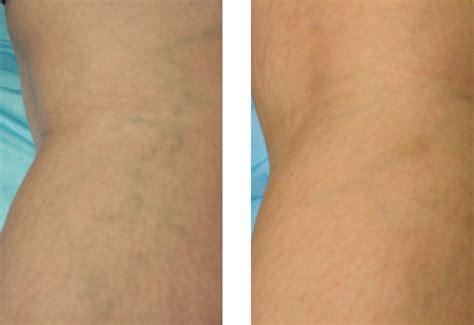 cellulite removial picture 15