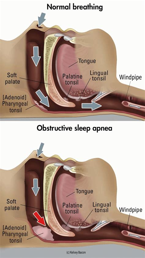 extreme sleep apnea picture 7