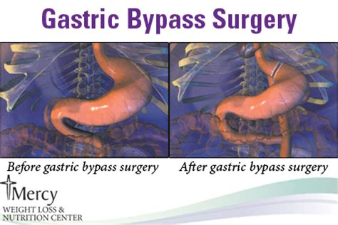will gastric byp work if you are weight loss resistant picture 9