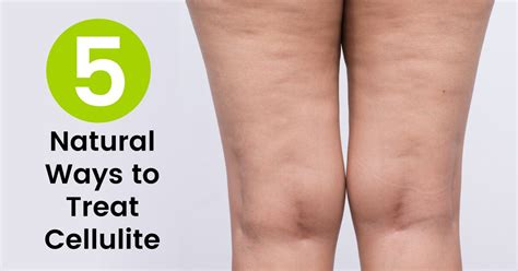 what is cellulite picture 1