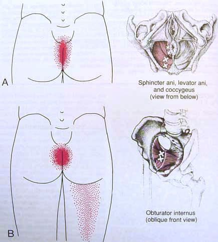 acupressure points for pelvic muscle spasms picture 6