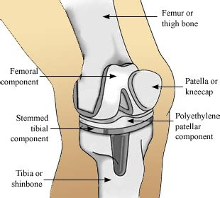 when do knee joint replacements get revised picture 6