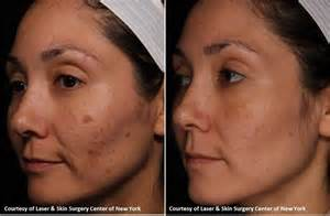 laser skin surgery picture 11