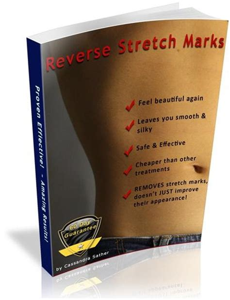 avitcid treatment for stretch marks picture 5