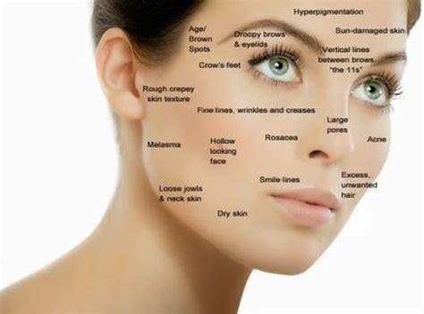 acne and estrogen picture 3